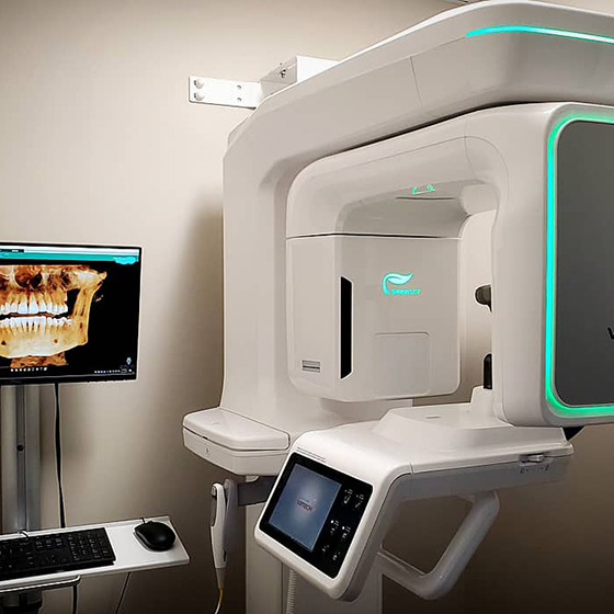 3-D Scanner at Signature Dental Care in Hickory Hills, IL